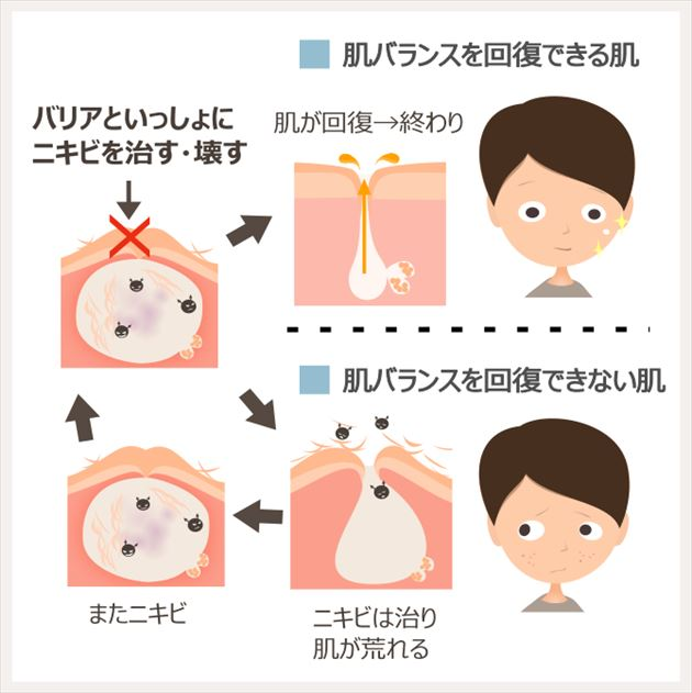 ニキビが治らない状態は、ニキビが出続ける肌の状態