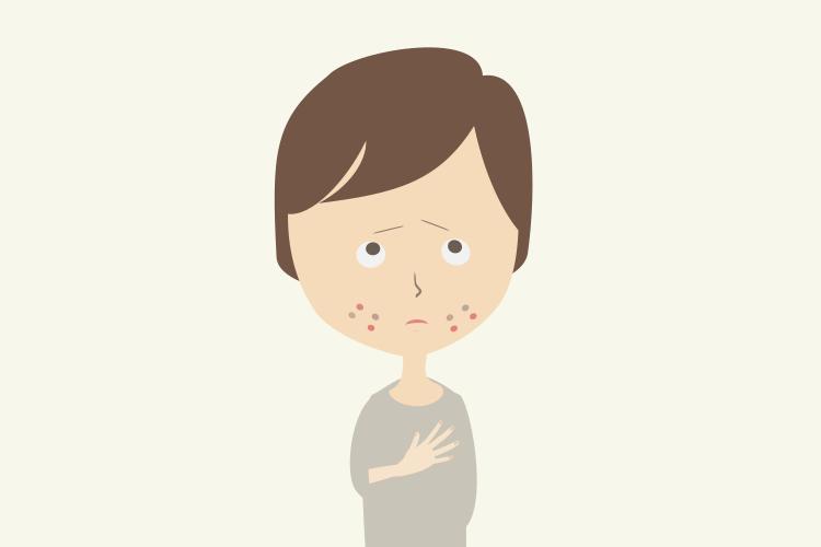 ニキビの原因と内臓