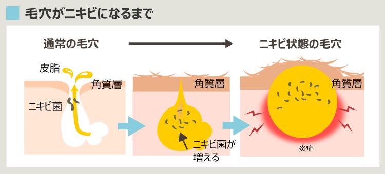 毛穴がニキビになる過程