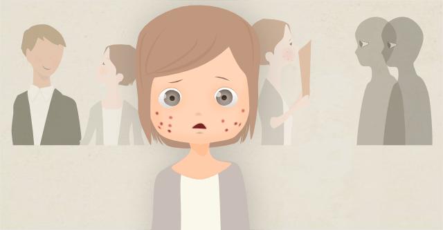 皮膚科でもくり返す、しつこいニキビを根本的に止める方法