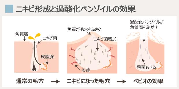 ニキビ形成とベピオ・過酸化ベンゾイルの効き目