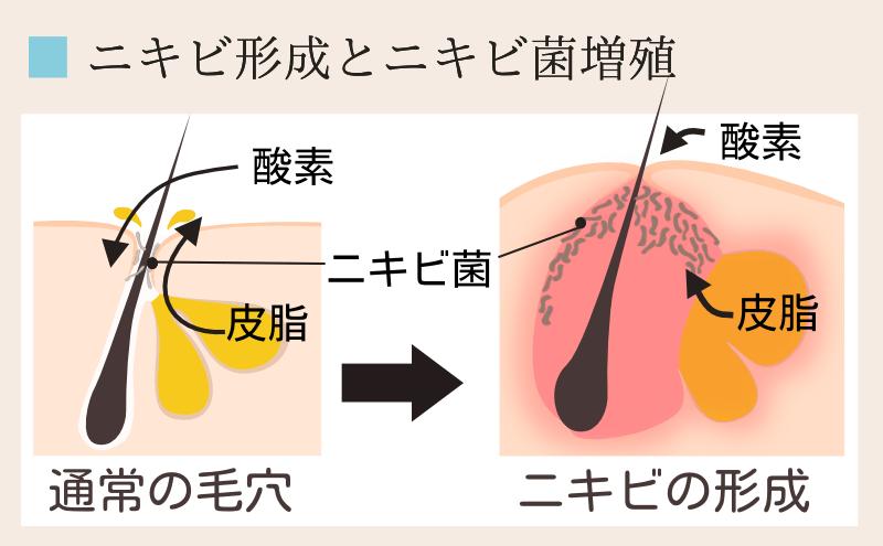 角質の肥厚とニキビ菌増殖