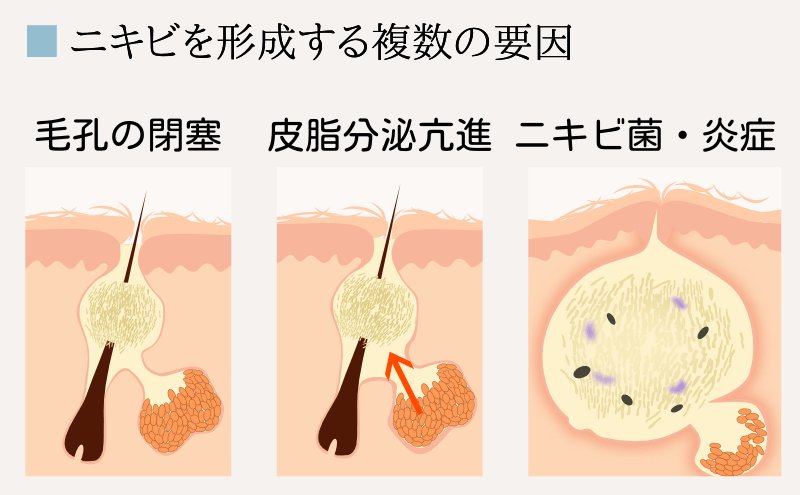 cause-of-acne