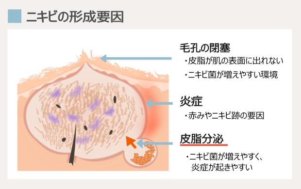 顎ニキビの原因はホルモンの病気か