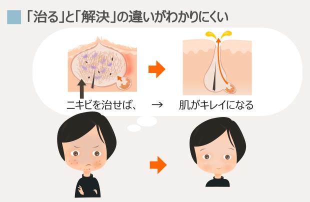 顎ニキビを治す方法でも、治らない理由