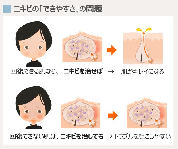 顎ニキビの「解決」に必要な条件