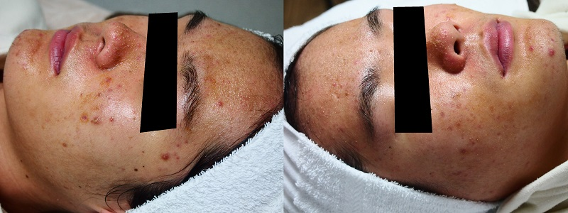 damage-of-skin-barrier-function-after-chemical-peeling