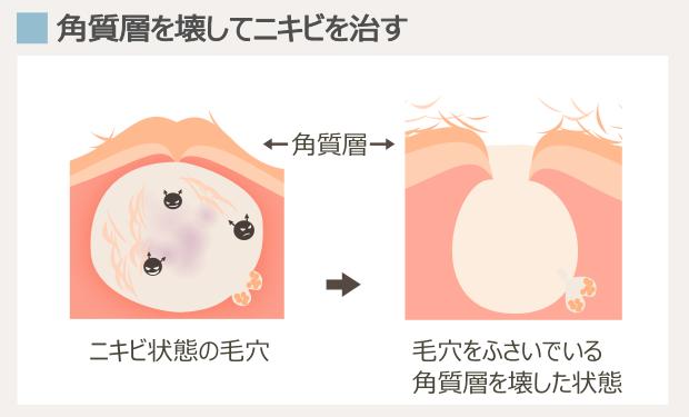 ディフェリンの作用機序・ニキビへの効果