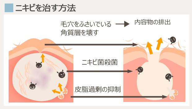 ニキビが完治する治療法