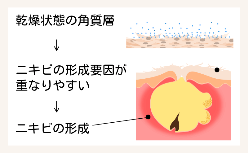 乾燥した角質層とニキビ