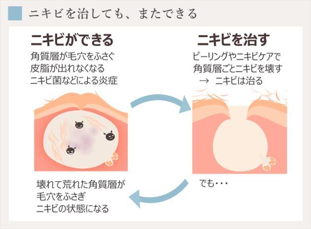 角質層を壊すニキビ治療