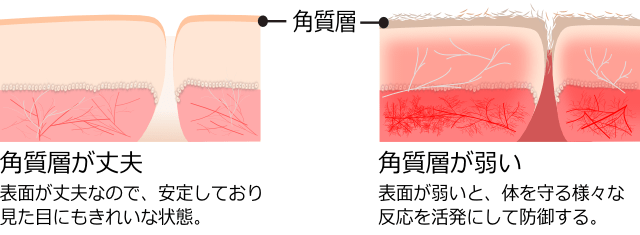 epidermis-defense-reaction