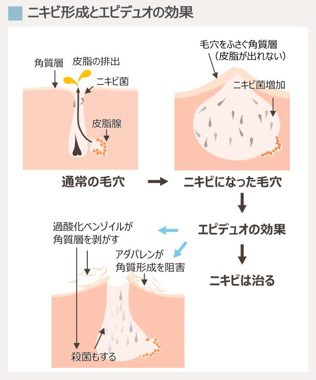 ニキビの原因とエピデュオゲルの効果