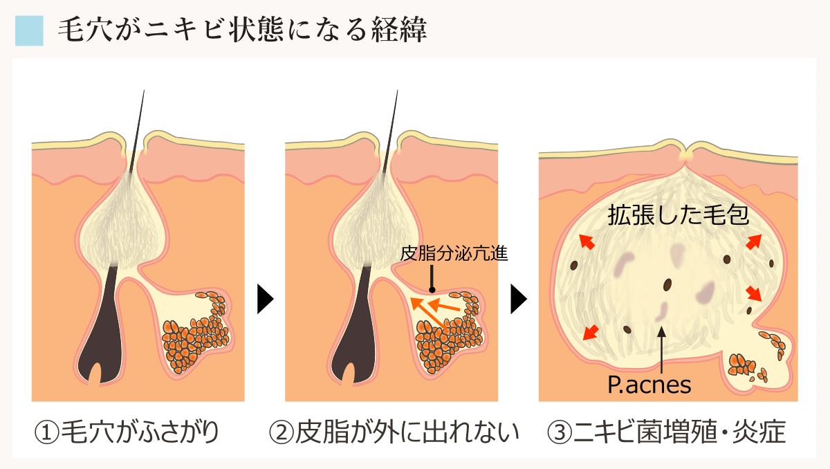 fotorf-acne