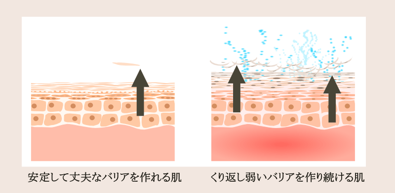 普通の肌とニキビが慢性化する肌