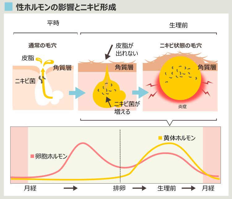 生理周期とニキビ形成の関連