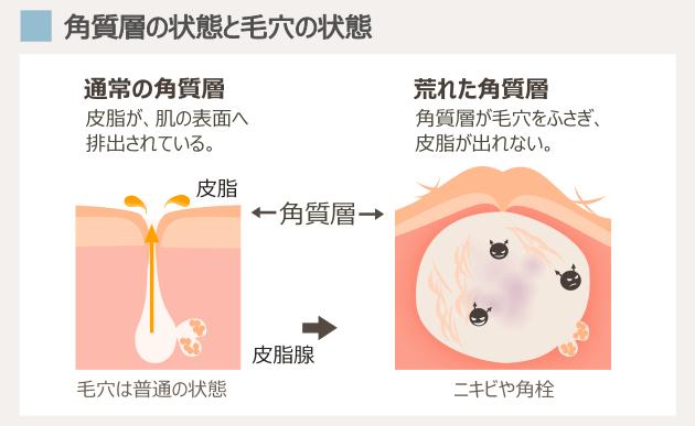 ニキビと毛穴と角質層の状態