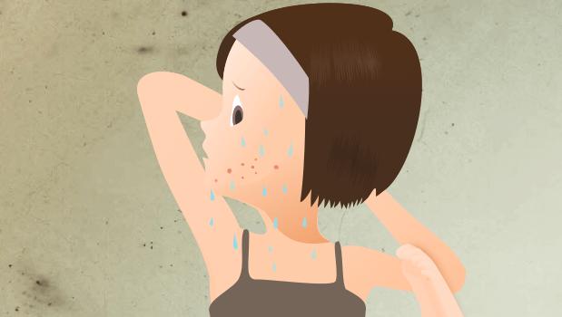 ホットヨガや岩盤浴でニキビが悪化する理由