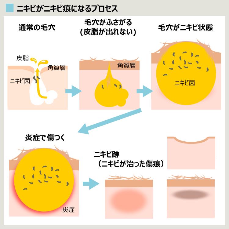 ニキビがニキビ跡になるプロセスの解説