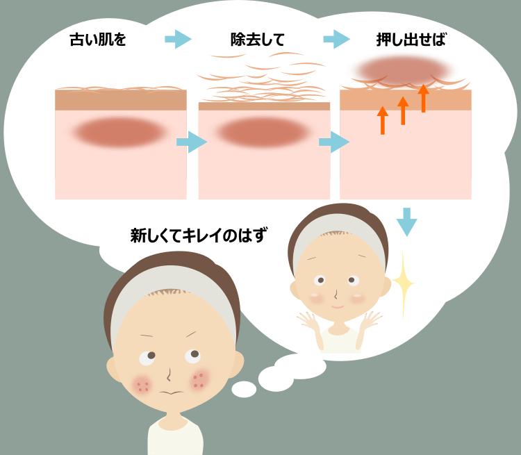 肌の誤解とピーリングの効果