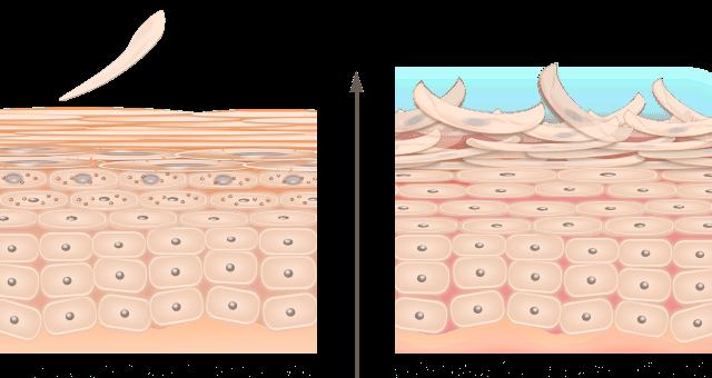 表皮ターンオーバーの異常
