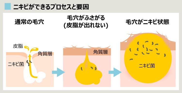 ニキビの要因とプロセス