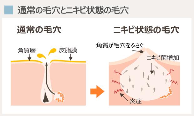 通常の毛穴とニキビ状態の毛穴