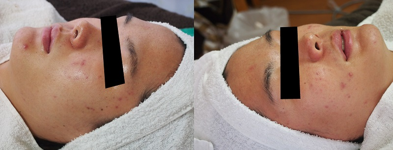 recovery-of-skin-barrier-function-after-chemical-peeling-1