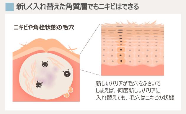 ニキビの時の角質層とターンオーバーの状態