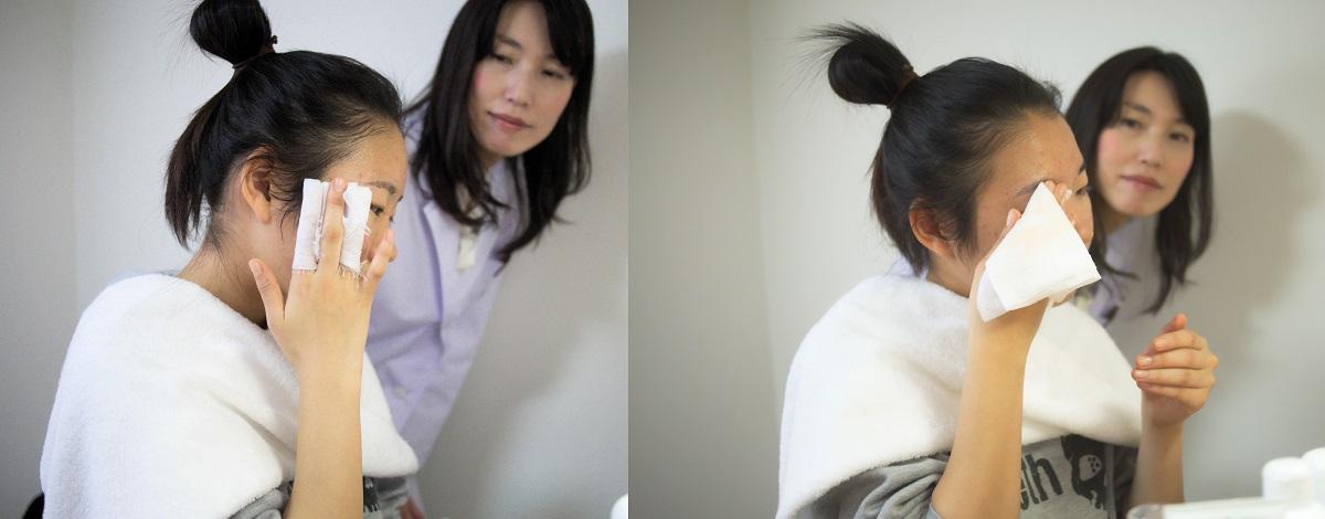 薬で治らないニキビの京都店でのスキンケア指導