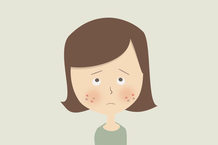 ニキビ治療は対症療法。根本的な治療をしたい。