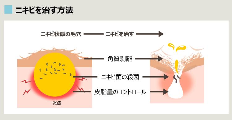 ニキビ治療の概要