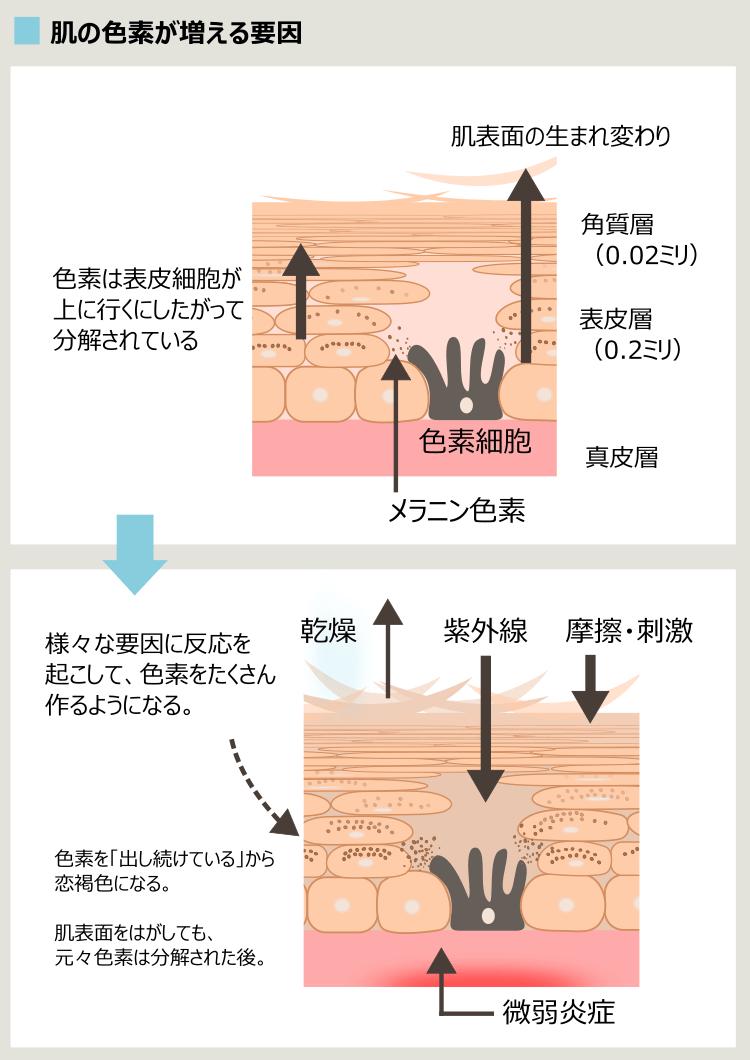 ニキビ痕と色素細胞