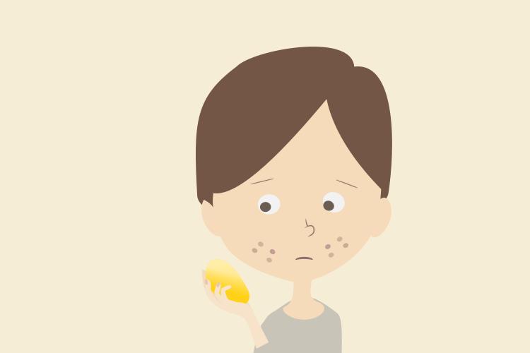 ビタミンC美容液でもニキビ痕が治らない