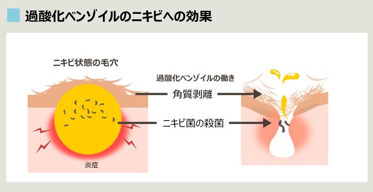 過酸化ベンゾイルの作用機序