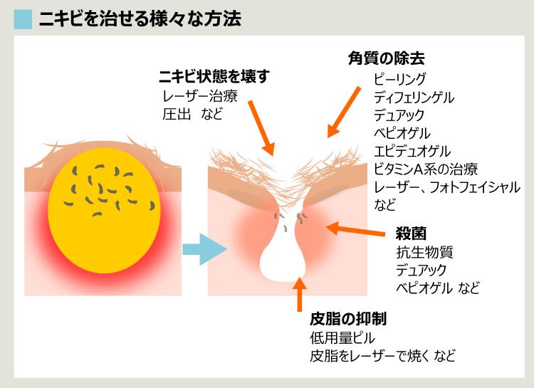 皮膚科での主なニキビ治療