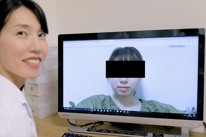 皮膚科で治らないニキビの改善。福岡、女性